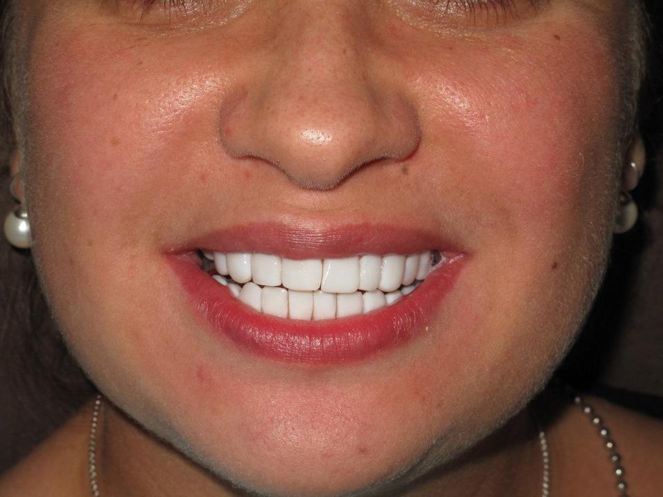 отбеливание зубов вредно ли это