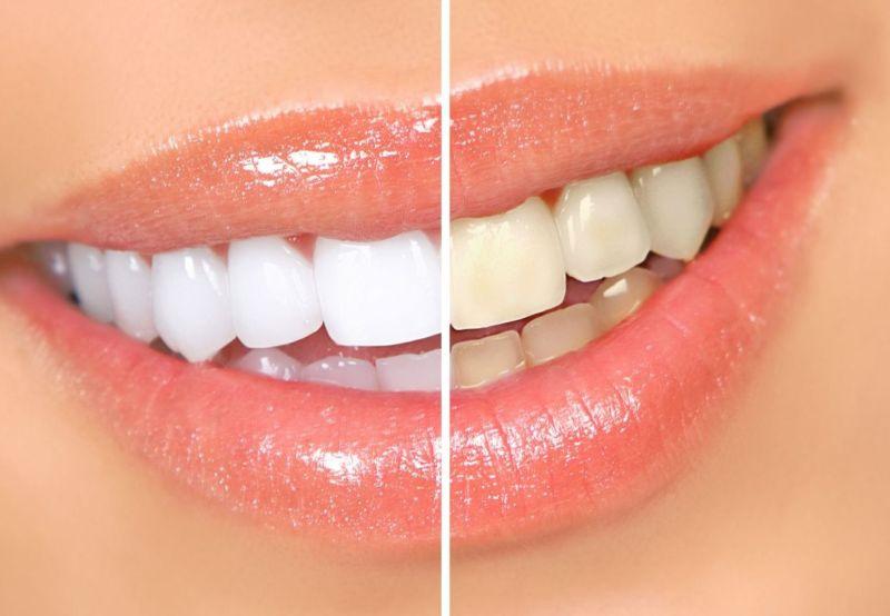 """Как сделать ваши зубы белыми - Сообщество """"Это интересно знать..."""" на DRIVE2"""