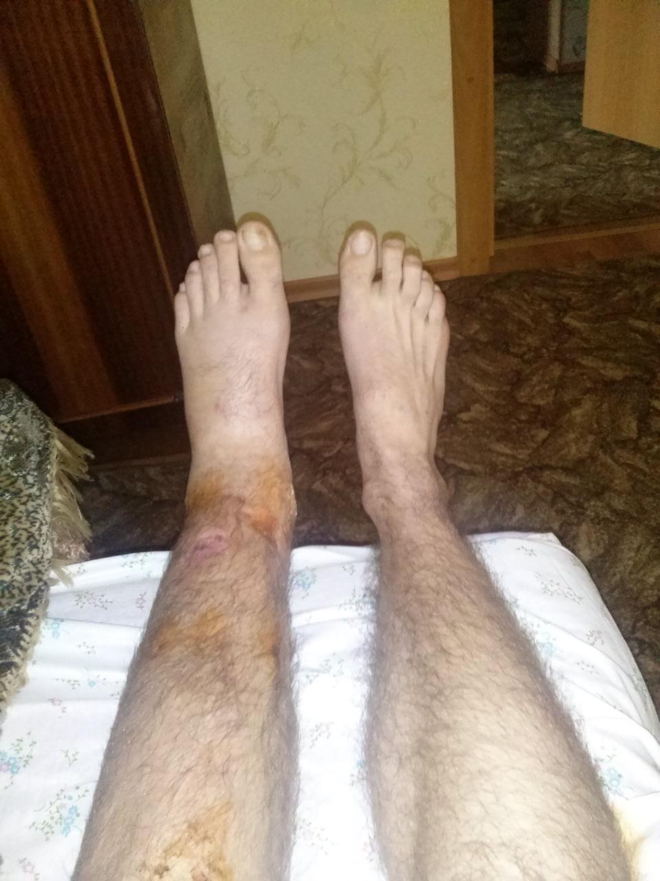 После снятия гипса с ноги больно ходить почему