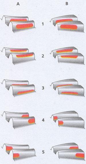 Регулировка редуктора заднего моста ваз