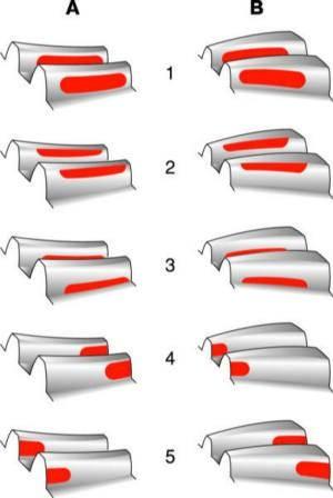 Регулировка гипоидной передачи видео