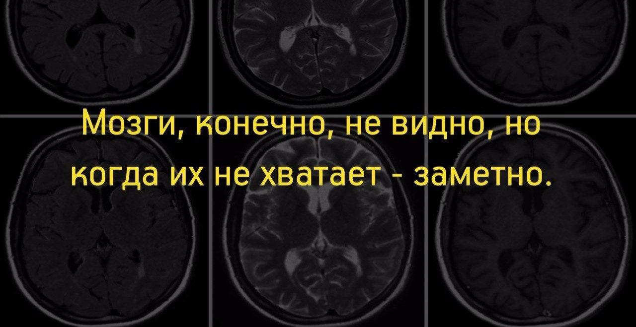 мозгов нету фото ближнем