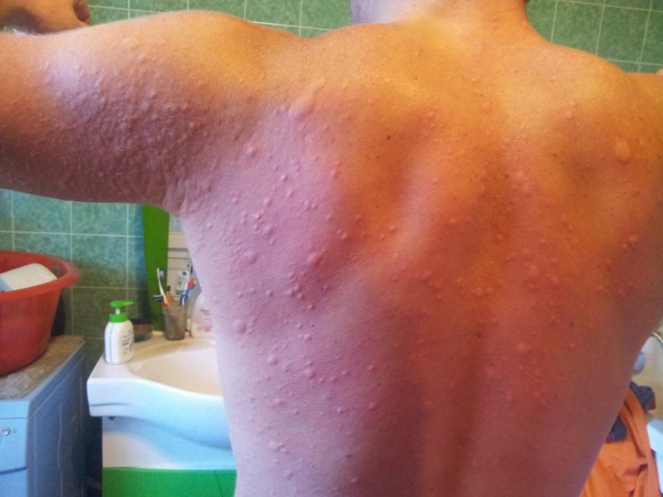 таблетки от укусов насекомых от аллергии